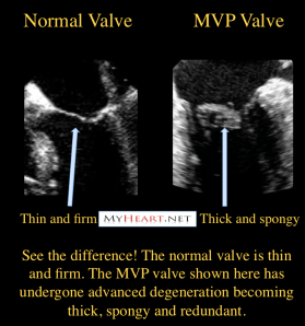 Myxomatous degeneration of mitral valve prolapse