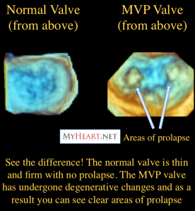 Prolapse of the A1 and A1 segments of the mitral valve
